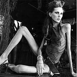 Anorexia-Nervosa_web_pic.jpg